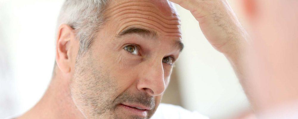5 שאלות שצריך לשאול לפני הליך השתלת שיער
